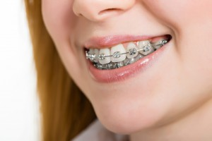 Teen wearing braces
