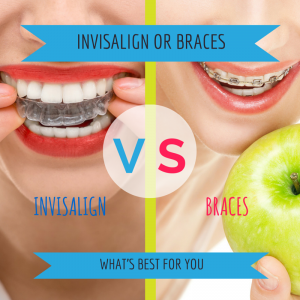 INVISALIGN-vs-BRACES-blog