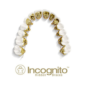 Incognito Braces Lakewood