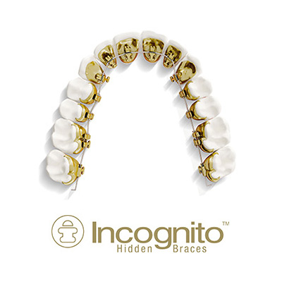 Incognito Lingual Braces Lakewood