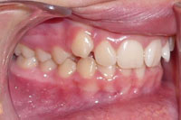 Patient's teeth before orthodontic treatment, side view