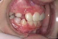 Patient's teeth after orthodontic treatment, side view