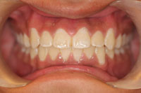 Patient's teeth after orthodontic treatment, front view