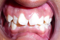Patient's teeth before orthodontic treatment, front view