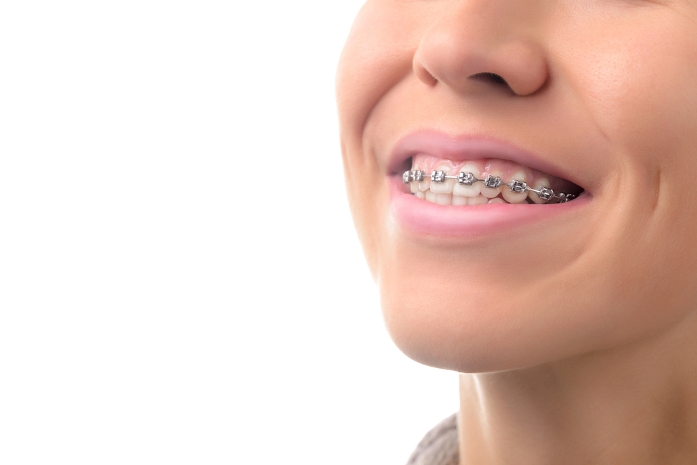 5 Signs You May Need Braces