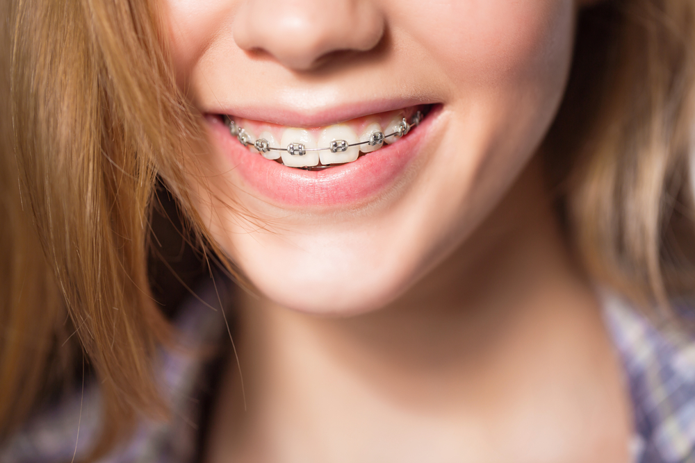 Orthodontic Questions - Lakewood