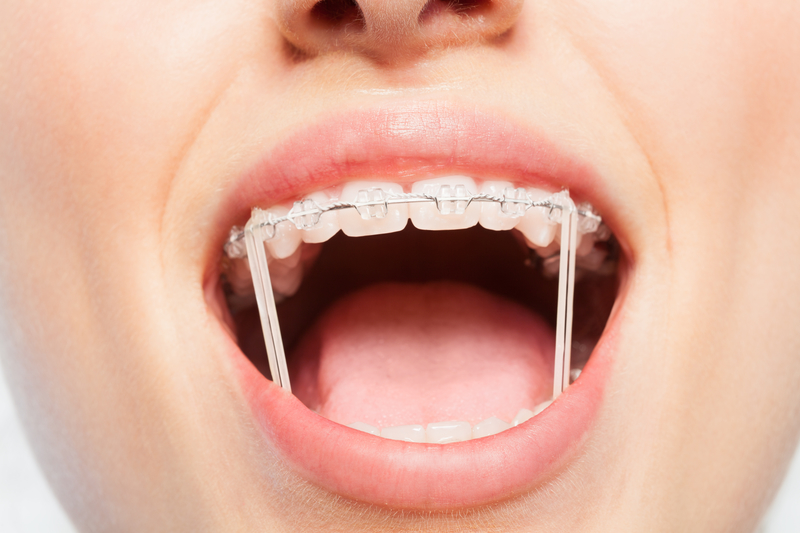 orthodontic rubber bands