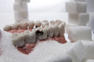 model of teeth with tooth decay surrounded by piles of sugar