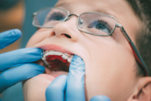Close-up of a child being fitted for a retainer