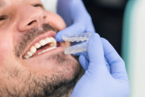 Man receiving transparent aligners in a dental office