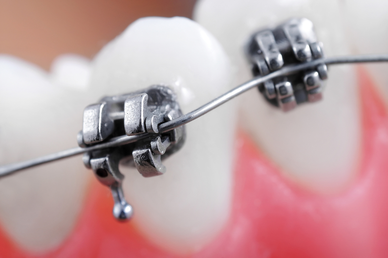 Close-up view of metal brackets and wires on teeth
