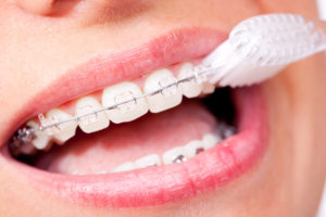 Close-up view of braces that are being brushed with a toothbrush