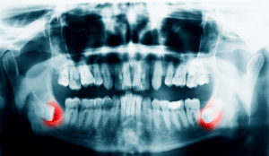 X-rays of a person's mouth highlighting the wisdom teeth