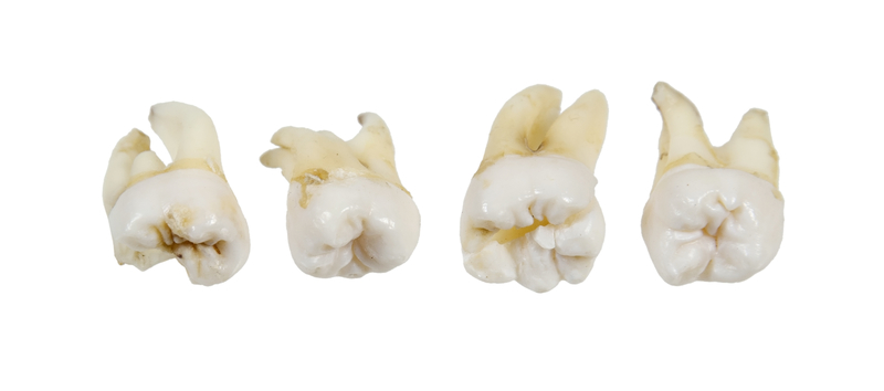 Close-up view of 4 wisdom teeth that have been pulled