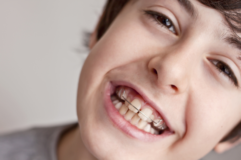 Young boy with interceptive orthodontics (braces) that is smiling at the camera