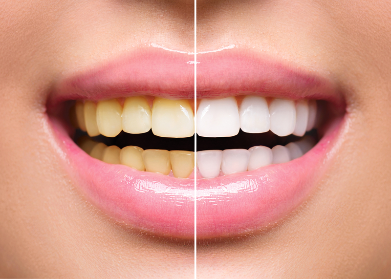 Teeth Whitening After Braces Belmar Orthodontics