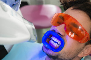 Male patient receiving teeth whitening treatment with a UV light in the dental office