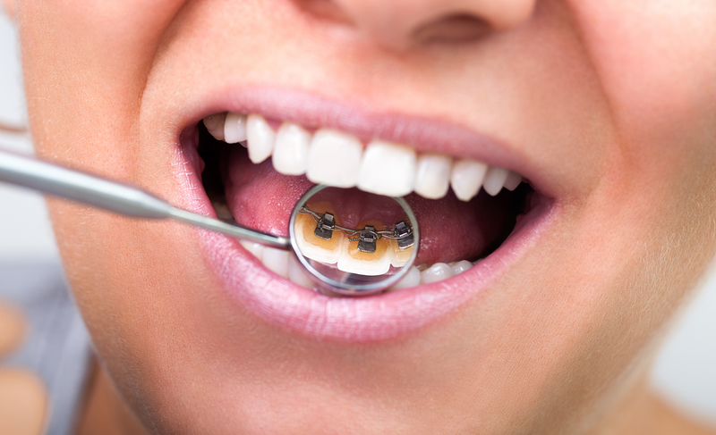 View of a dental mirror showing the camera that a patient has lingual braces behind their teeth.