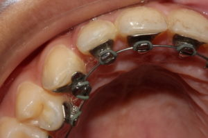 Close-up view of a person with lingual braces that are behind the teeth