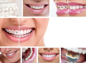 Several images of metal braces that are either on front of the teeth or behind the teeth