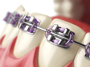 Close-up digital design of traditional metal braces on the bottom teeth