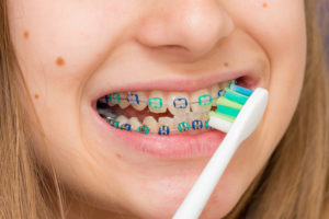 Close-up view of a young patient's mouth while they are brushing their braces with a toothbrush.