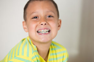 A young boy with braces on his teeth smiling at the camera.