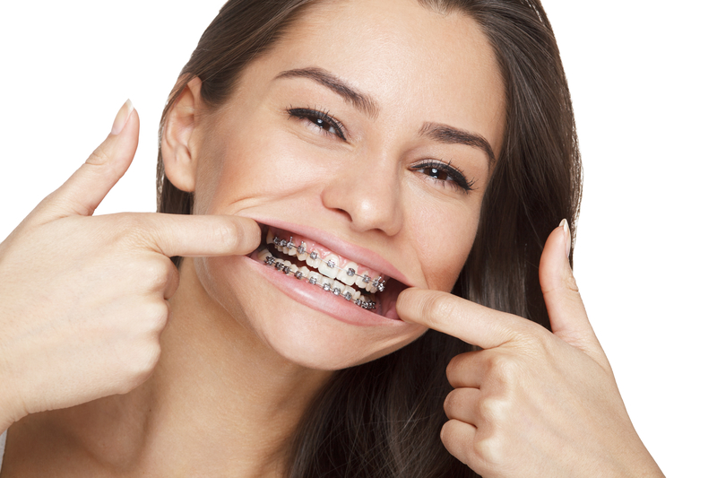 Girl that is pulling her smile wide with her fingers and she is happy and wearing braces.