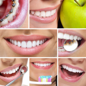 Image collage of a person's smile and their lingual braces.