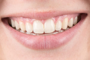 Close-up view of a person's smile.