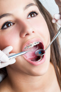 Young woman with braces that is at a dental appointment having her teeth examined.