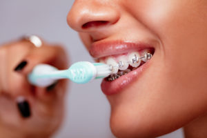Close-up view of a woman's mouth as she is brushing her teeth with braces.