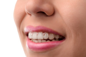 Close-up view of a woman's mouth that has Invisalign transparent aligners on the teeth.
