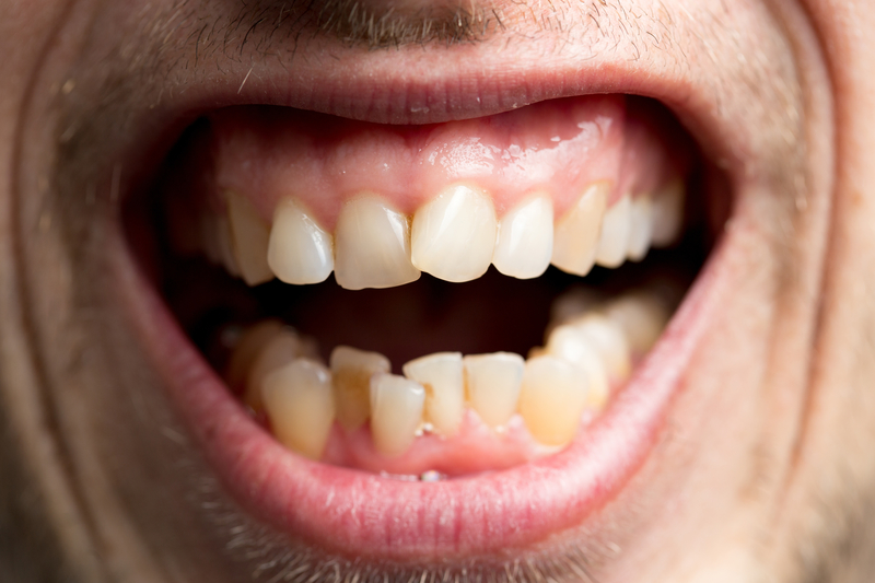 Close-up view of a person with crooked adult teeth.