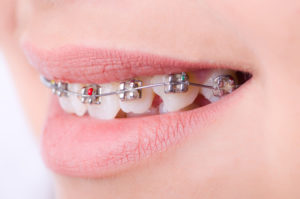 A close-up view of a person that has braces on their top teeth. The teeth are not all the same heights.