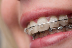 Close-up view of clear braces on a patient's teeth.