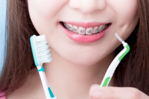 Close up view of a woman's mouth that has braces on it and she is holding a toothbrush and a proxabrush in her hands.