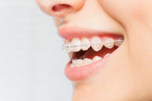 A close-up view of a person's smile that has clear, ceramic braces on the teeth.