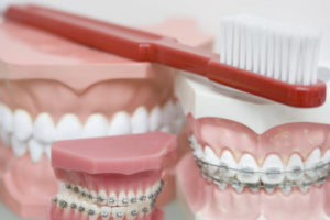 Dental models that have orthodontic appliances on the teeth. An example of metal braces and ceramic braces is seen.