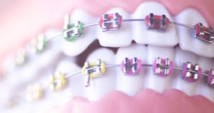 A close-up view of metal braces that have the ligature elastics around the brackets. The braces are on a dental model.