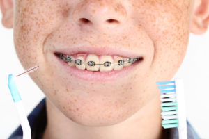 Young boy with braces holding toothbrush