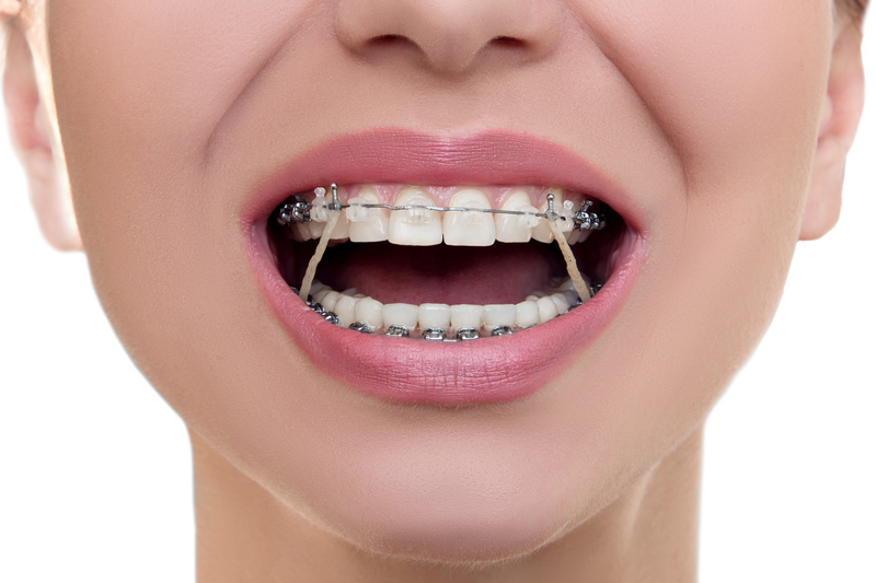Closeup view of a woman's mouth with braces and elastics