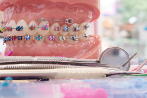Orthodontic model of orthodontic devices used in the mouth