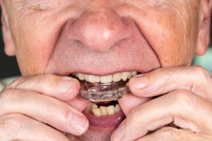 Senior man putting teeth aligner in mouth
