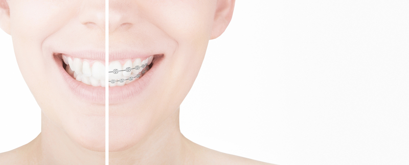 Woman with straight teeth on one side of mouth and teeth with braces on other side