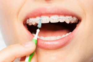 Female mouth smiling with braces as she cleans in between teeth with interdental brush