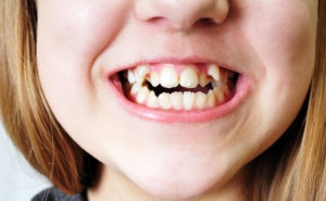 Close up of crooked teeth of girl