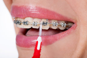 Up close photo of woman cleaning in between her braces with a proxabrush.